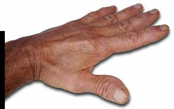 charles Prowell's hand